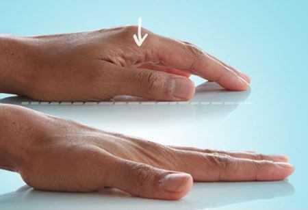 Гимнастика для кистей рук. Оздоровительная гимнастика для суставов кистей рук при артрите