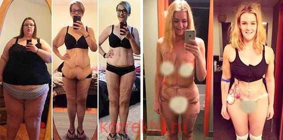 Кожа груди при похудении
